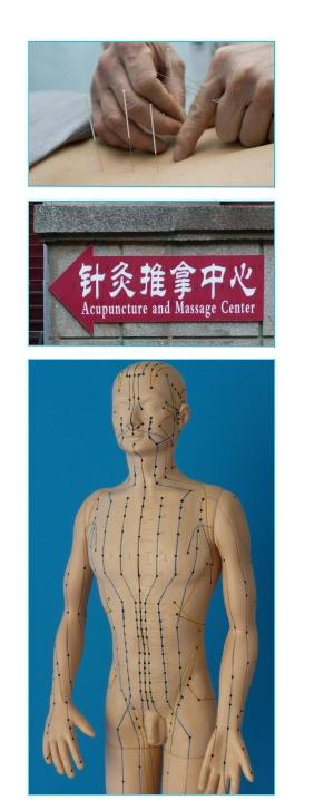 Schmerzakupunktur nach Master Tung